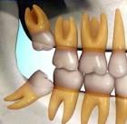 Portiniai dantys ir jų pašalinimas