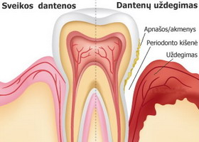 Kraujuojančios dantenos