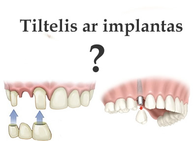 Implantavimas ar protezavimas tilteliu?