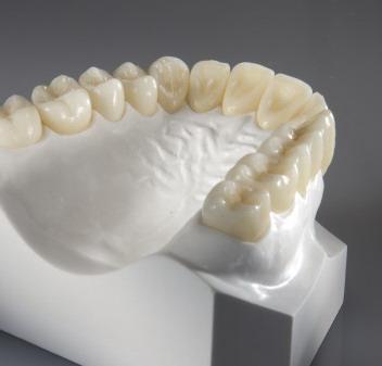 Žandikaulis - dantų apvilkimas